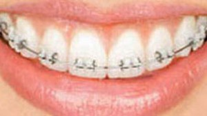 Types of Braces Sebring Avon Park Lake Placid | Steven M ...